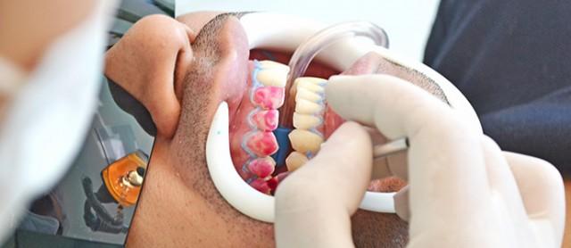 Sobre o clareamento dental do blogueiro de Uberlândia, Bruno Figueredo